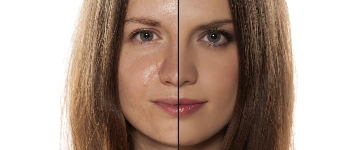 Effetto lucido sul viso: tutto quello che devi sapere per eliminarlo